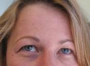 Trans-Advanced-Dermatology--After