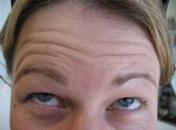 Trans-Advanced-Dermatology--Before