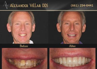 Trans-Alexander-Villar-before-after