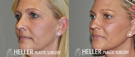 Trans-Heller-facelift-fat-grafting-angle