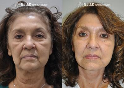 Trans-Heller-Facelift-before-after