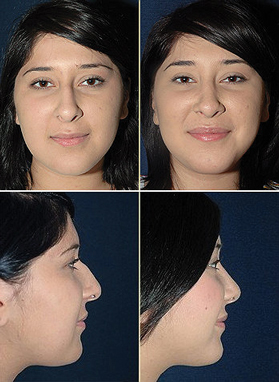 Trans-Marc-Lussier-Before-After