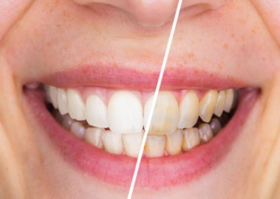 Trans-Promenade-Dentistry-Before-after