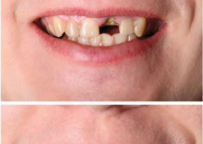 Trans-Promenade-Dentistry-Before-after2