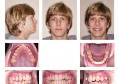 Trans-Snow-Orthodontics-before-after2
